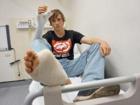 Austrālijā vīrietim zaudētā īkšķa vietā pārstādīts kājas lielais pirksts